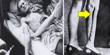 10-terribles-experimentos-humanos-que-llevaron-a-cabo-los-nazis-banner