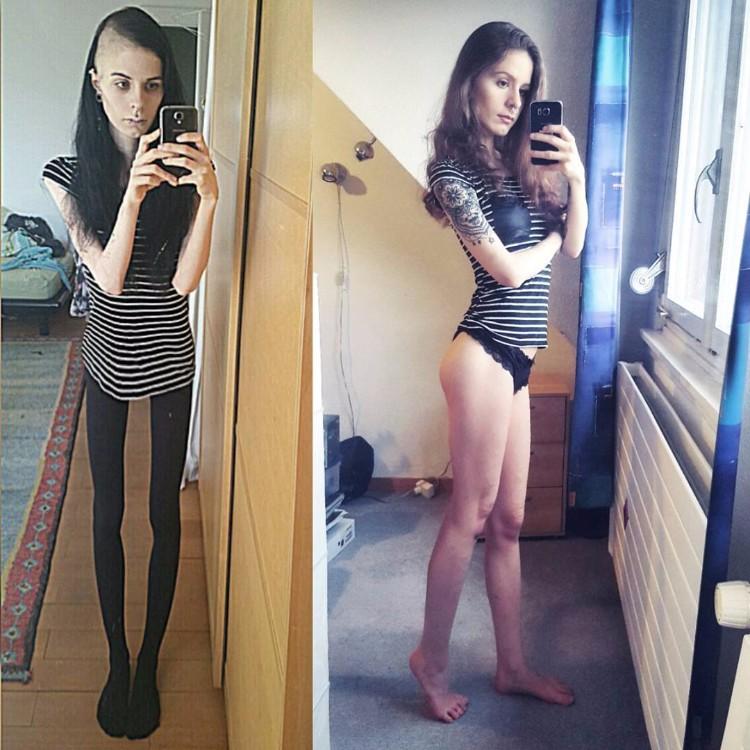 julia-janssen-anorexia-extrema-1
