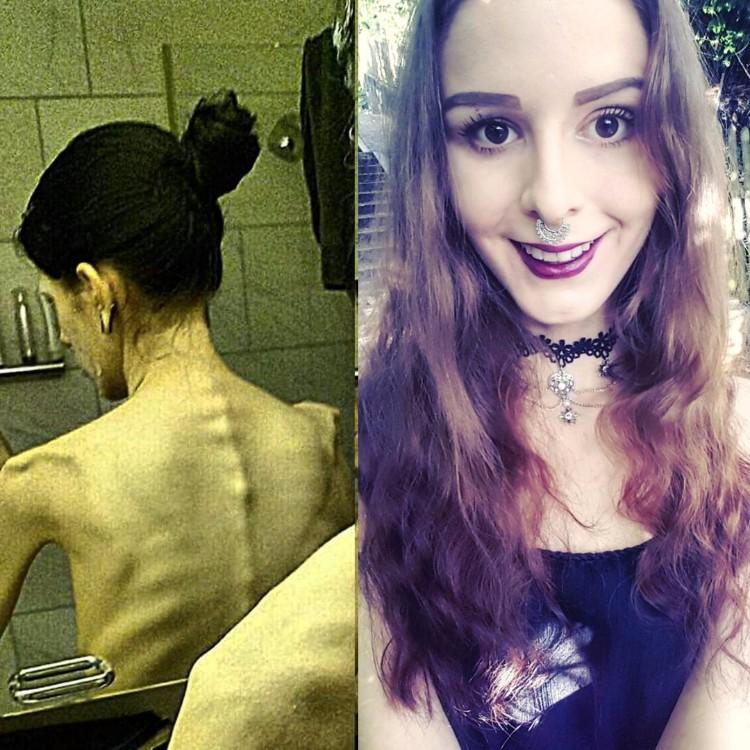 julia-janssen-anorexia-extrema-5