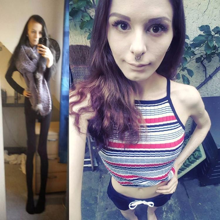 julia-janssen-anorexia-extrema-7