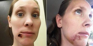 kari-kummins-de-35-anos-descubrio-que-padecia-extrano-cancer-de-piel-8